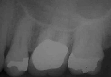 Where is the odontogenic swelling stemming from?